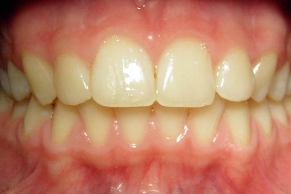 Скученность передних верхних и нижних зубов