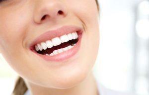 Красивая улыбка после отбеливания Opalescence