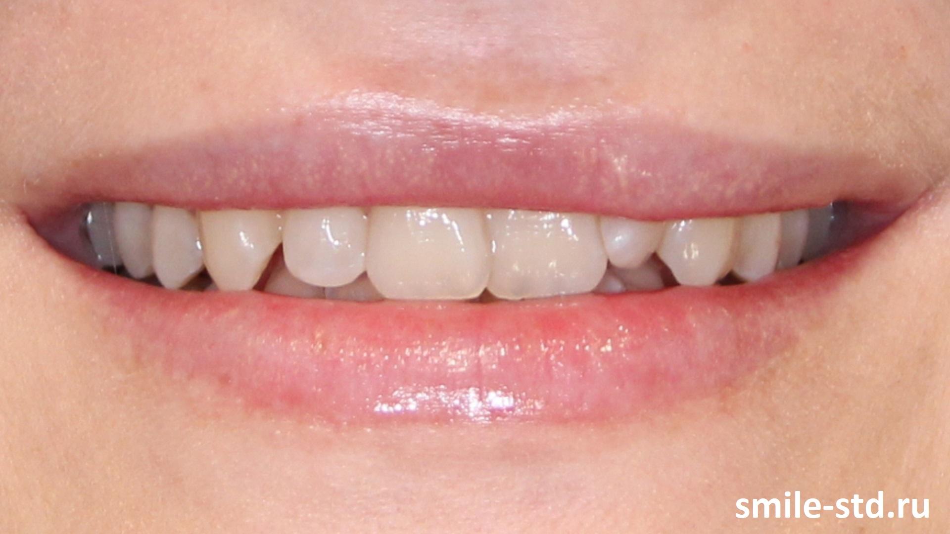 У пациентки была врожденная асимметрия губы, то есть во время улыбки у нее губы неравномерно приподнимаются. Пациент проходил лечение на винирах в клинике Smile STD, Москва