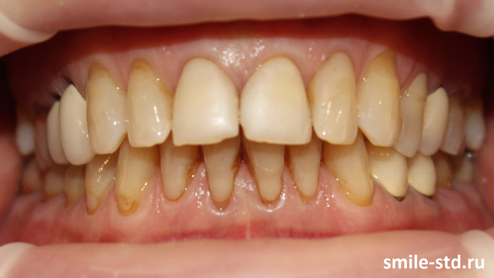 Неправильно установленные металлокерамические коронки серьезно нарушили прикус и привели к разрушению зубов. Пациент клиники Smile STD, Москва
