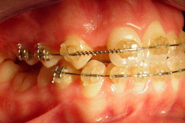 Прямой прикус передних зубов, перекрестный левых боковых, суженность верхней челюсти.