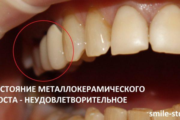 Состояние коронок неудовлетворительное, они уже не состоятельны, шейки оголены, в некоторых местах наблюдаются сколы на коронках. Пациент клиники Smile STD, Москва