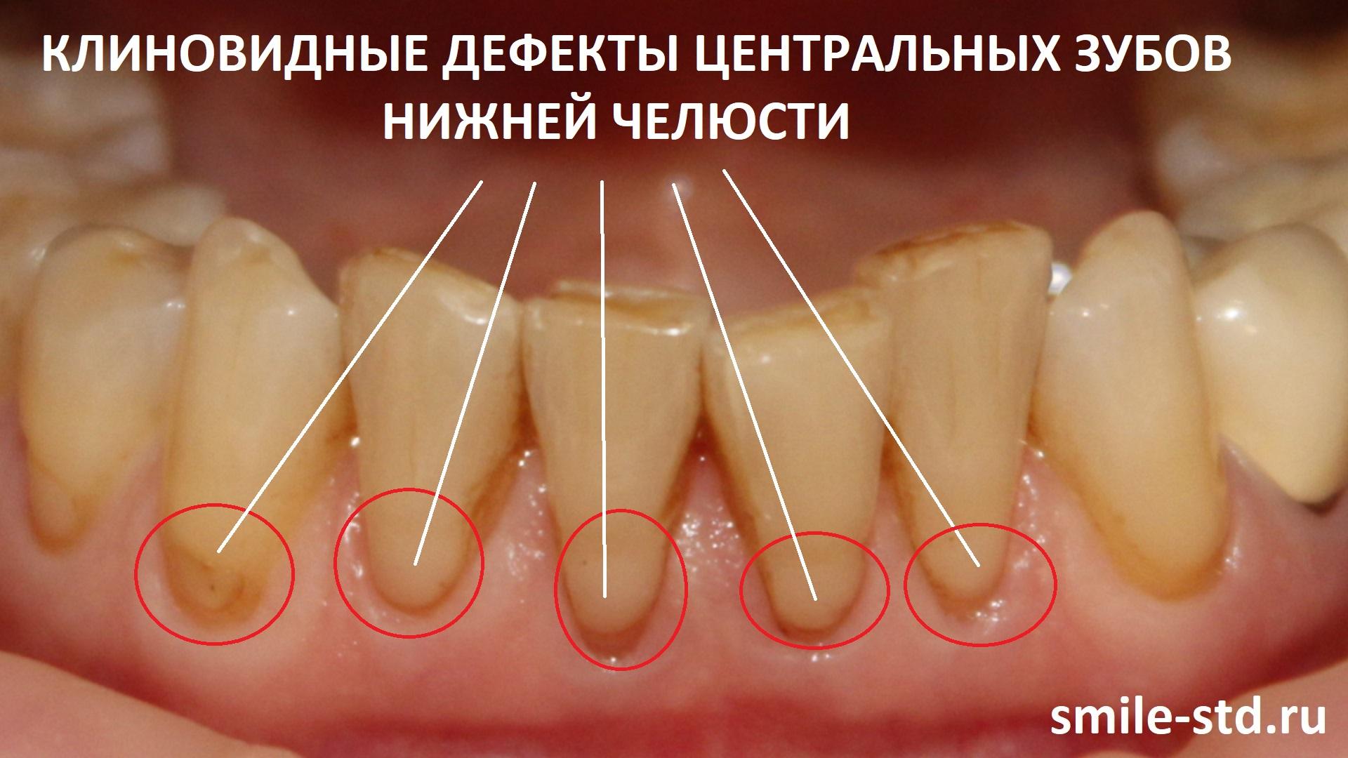 В пришеечных областях центральной группы зубов нижней челюсти наблюдались клиновидные дефекты и стираемость режущего края. Пациент клиники Smile STD, Москва