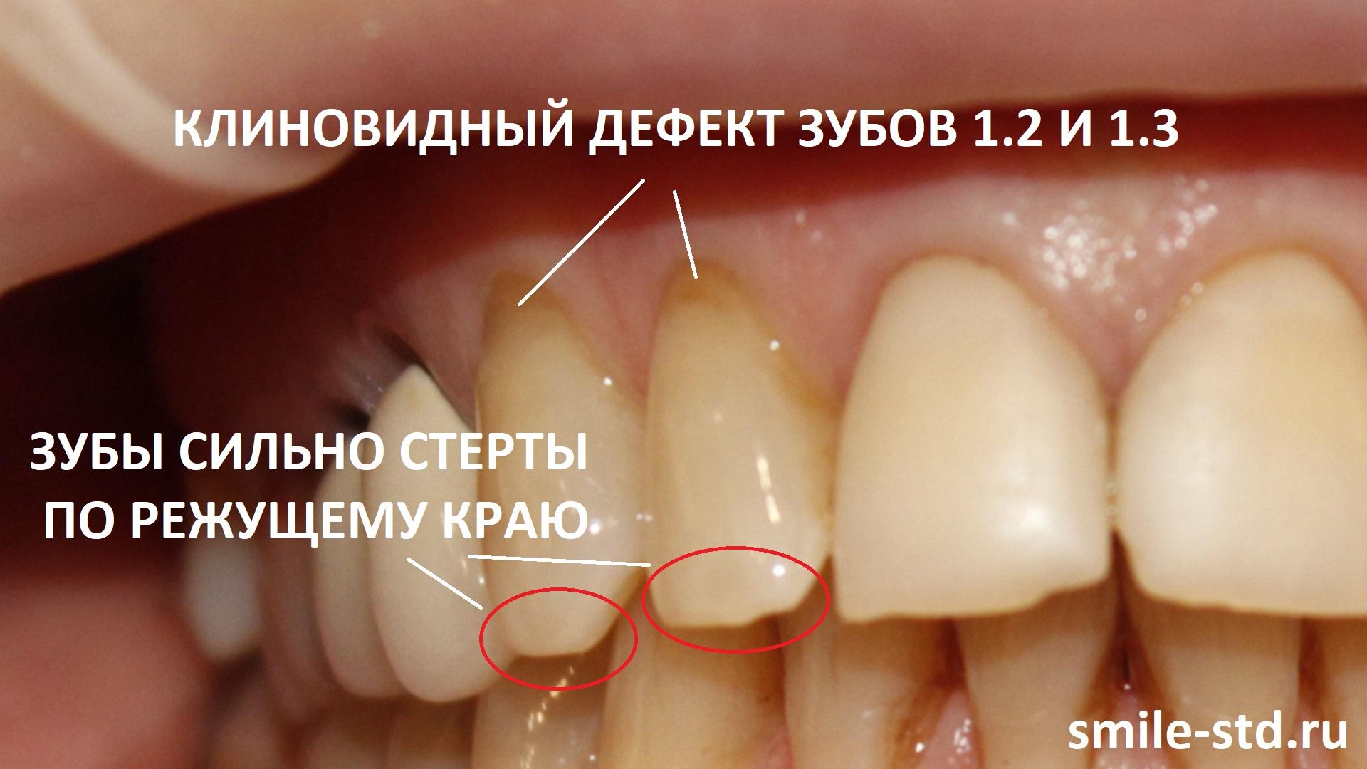 Зубы 1.2 и 1.3 имеют небольшие клиновидные дефекты в пришеечных областях и сильную стираемость по режущему краю. Пациент клиники Smile STD, Москва