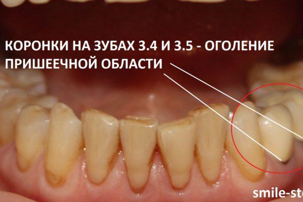 Зубы 3.4. и 3.5 находились под коронками, шейки оголены, в некоторых местах наблюдаются сколы на коронках. Пациент клиники Smile STD, Москва