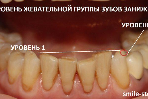 Фронтальная группа нижних зубов расположена выше, чем жевательные зубы. Пациент клиники Smile STD, Москва