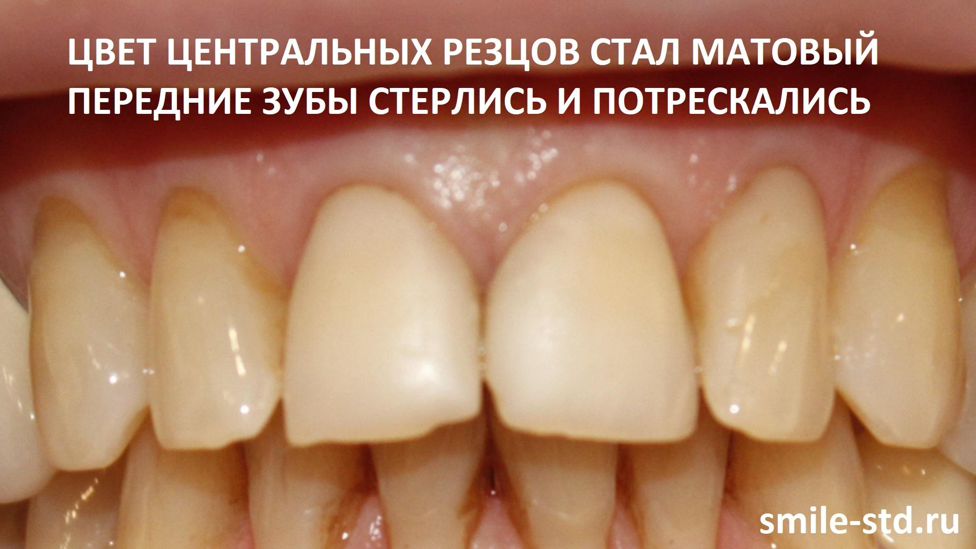 Центральные зубы обрели матовость, композиты выцвели, цветом зубы изменились, стерлись и потрескались. Пациент клиники Smile STD, Москва