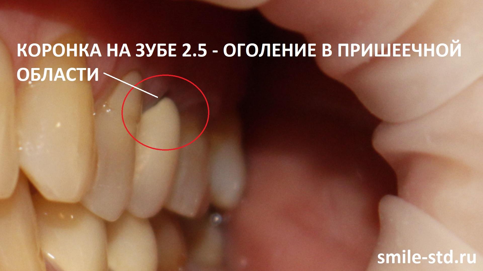 Зуб 2.5 обрел те же самые проблемы - оголение в пришеечной области, трещины в эмали керамической коронки. Пациент клиники Smile STD, Москва