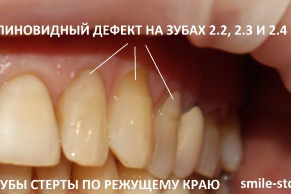 Зубы 2.2, 2.3 и 2.4 имели стираемость по режущему краю и клиновидные дефекты в пришеечной областях. Пациент клиники Smile STD, Москва