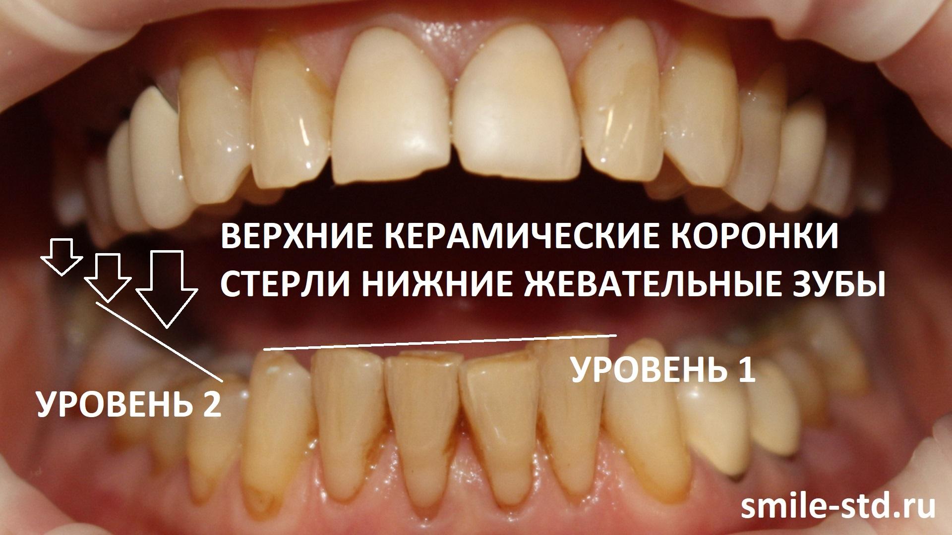 Зубы 4.4 и 4.5 также были занижены в прикусе из-за постоянного давления верхних коронок. Пациент клиники Smile STD, Москва