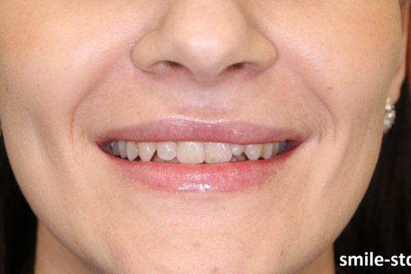 У пациентки была врожденная асимметрия губы, то есть во время улыбки у нее губы неравномерно приподнимаются. Пациент клиники Smile STD в Измайлово. Лечащий врач – Асоян Артак Антонович