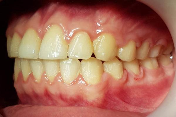 Обратный прикус передних зубов, скученность передних верхних и нижних зубов