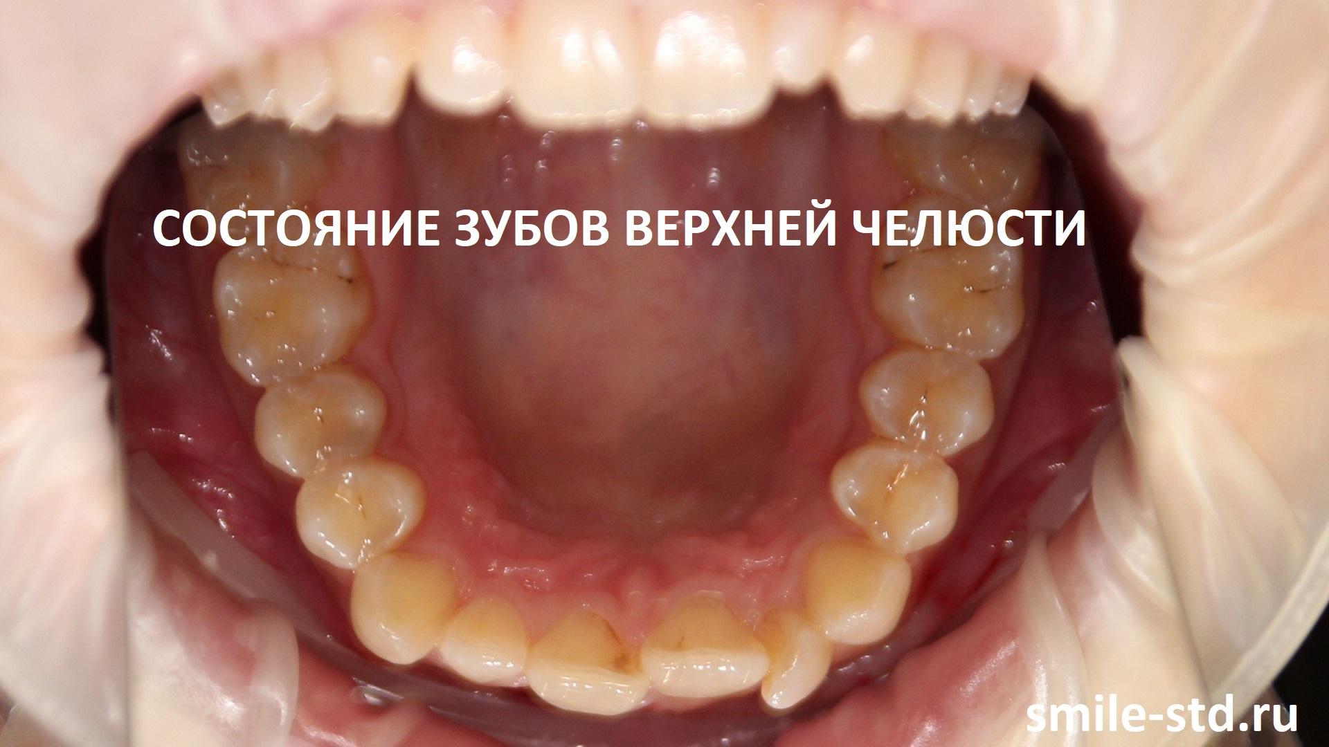 На верхней челюсти у пациентки один резец запал и кажется меньше. Пациент клиники Smile STD в Измайлово. Лечащий врач – Асоян Артак Антонович