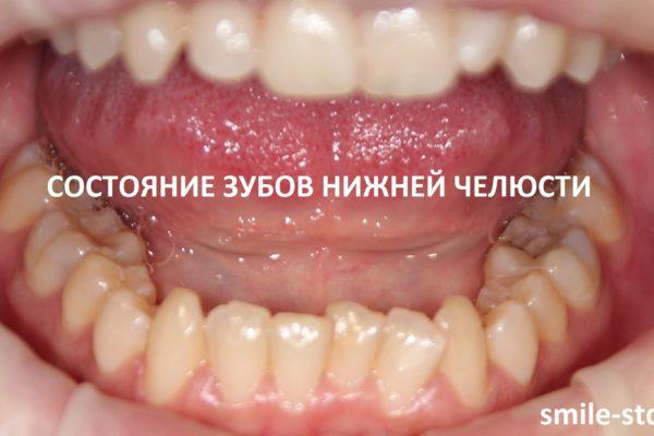 На нижней челюсти с правой стороны зуб немного искривлен. Пациент клиники Smile STD в Измайлово. Лечащий врач – Асоян Артак Антонович