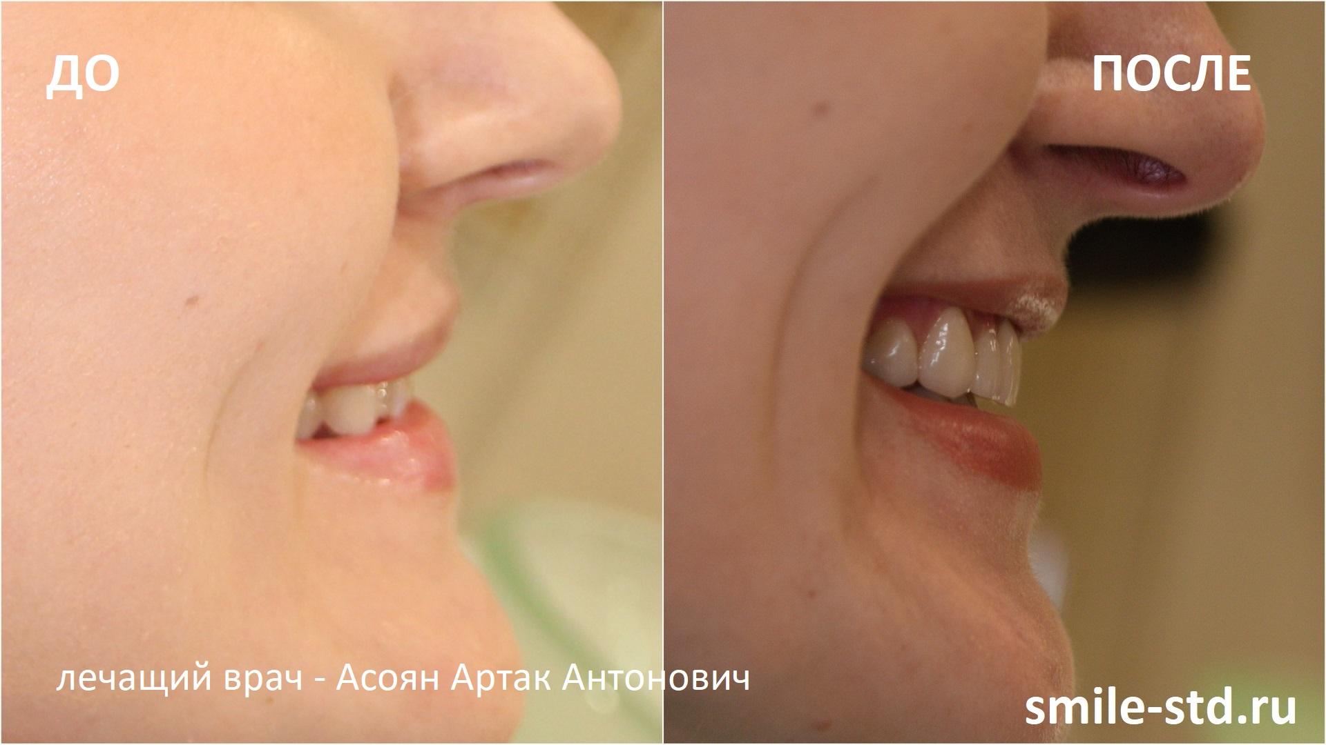 Сравнение улыбки до и после установки виниров. Пациент клиники Smile STD в Измайлово. Лечащий врач – Асоян Артак Антонович