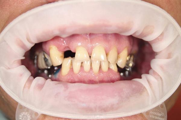 Протезирование на имплантах и опорных зубах с применением цирконевых коронок и виниров