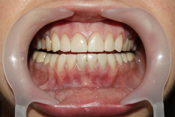 Реставрация зубов с применением виниров и керамических накладок