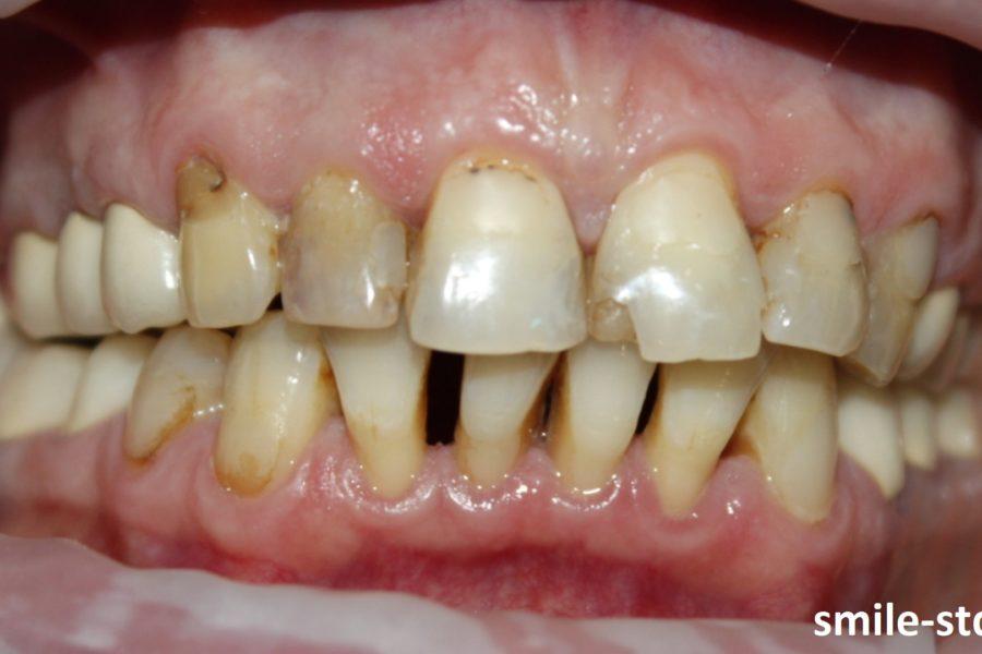 На фото можно наблюдать многочисленные кариозные поражения, поддесневые и наддесневые отложения зубного камня, пародонтит и окклюзионную травму.