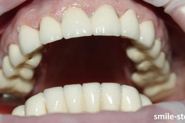 Так выглядит верхняя челюсть после проведенного лечения. Врач Асоян Артак Антонович, клиника Smile STD, Москва.