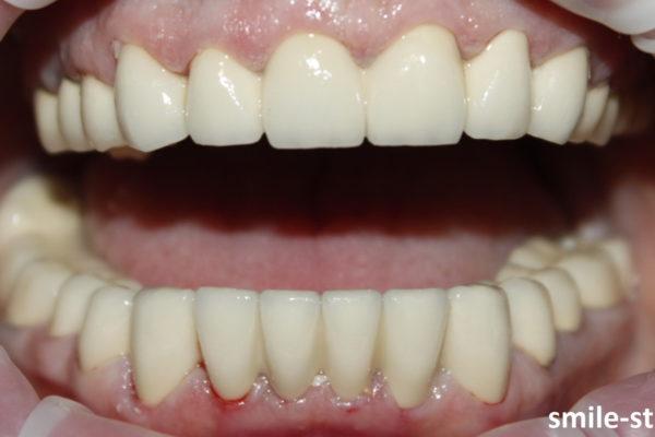 Лечение нарушения прикуса проведено успешно в клинике Smile STD, Москва. Лечащий врач – Асоян Артак Антонович.