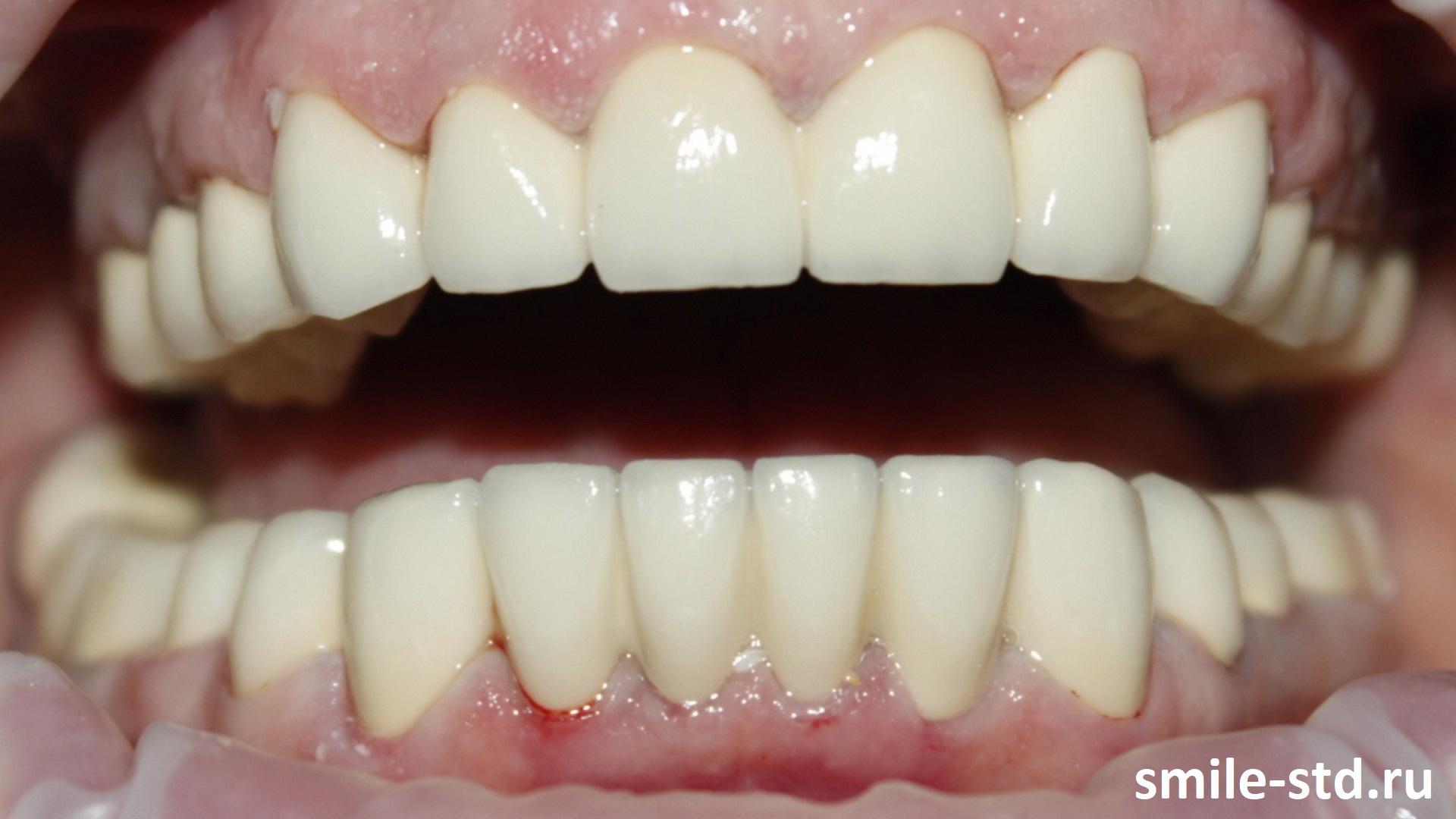 Лечение нарушений окклюзии и прикуса, восстановление разрушенных зубов в клинике Smile STD, Москва. Лечащий врач – Асоян Артак Антонович