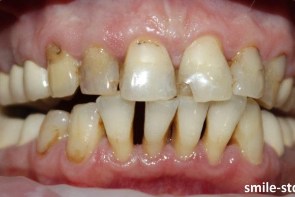 Нарушение окклюзии и прикуса привело к серьезному разрушению зубов. Пациент клиники Smile STD, Москва