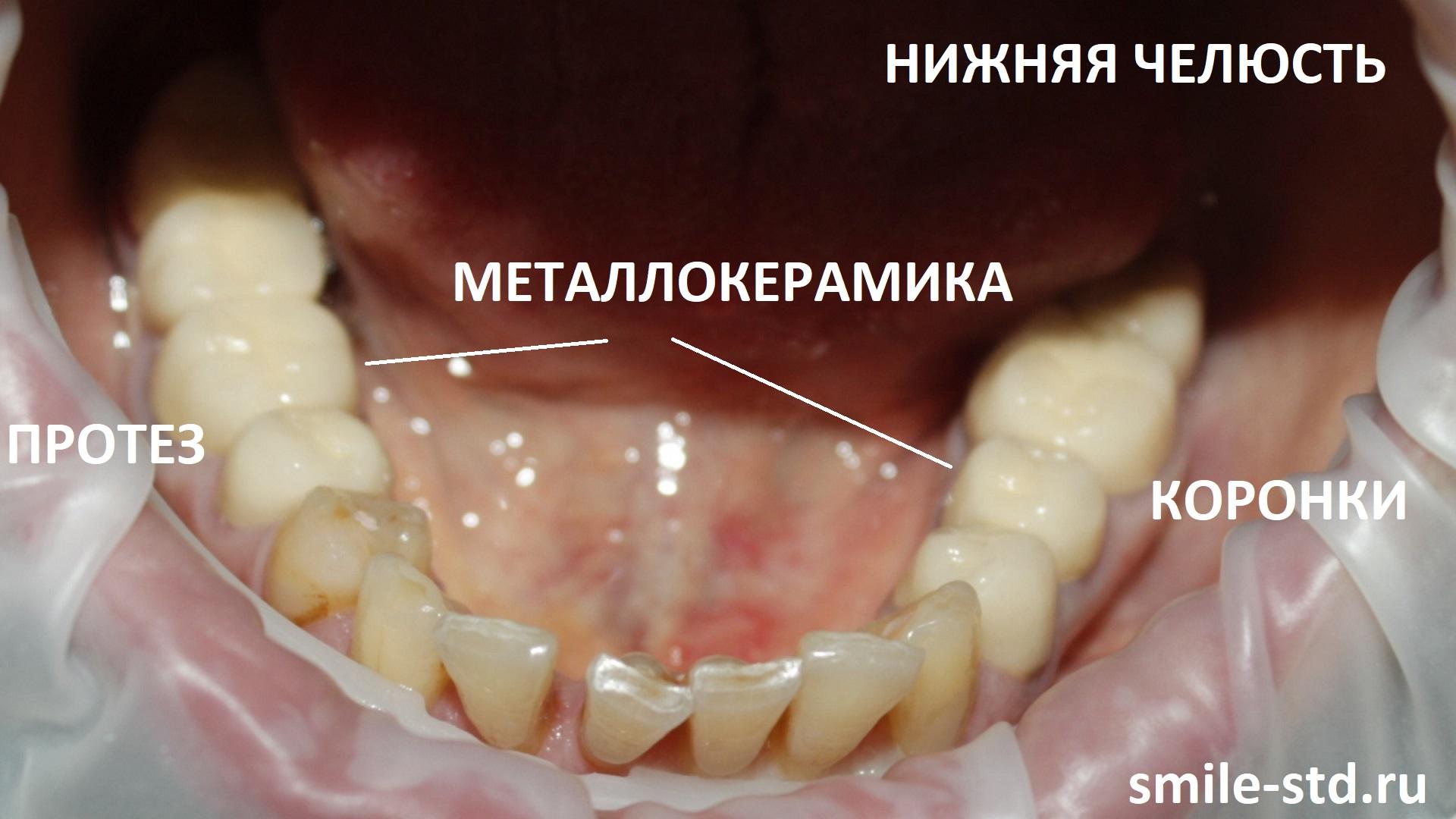 Неправильная установка металлокерамики на нижней челюсти привела к развитию окклюзионной травмы, пародонтита и кариеса.