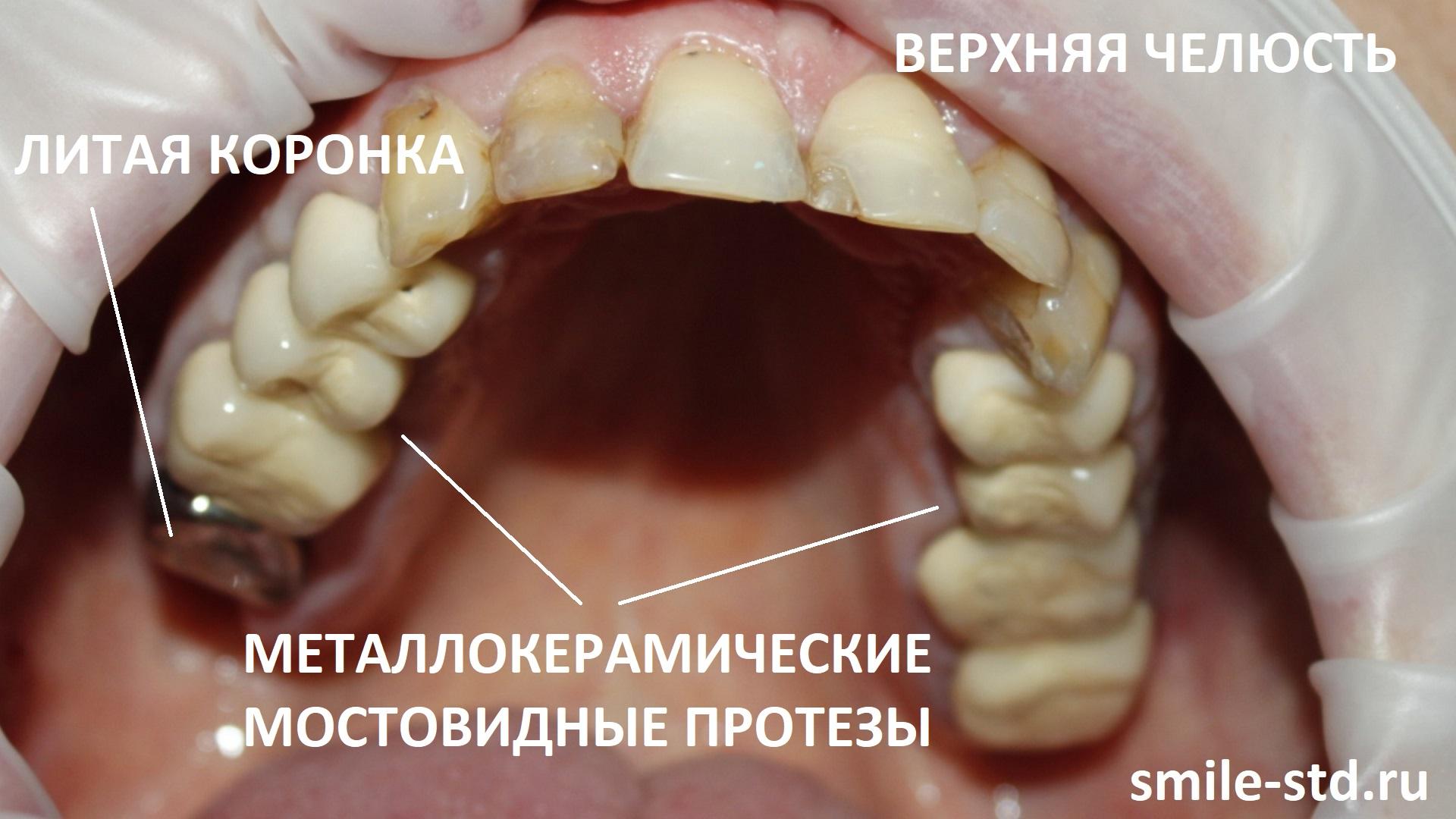 Неправильная установка металлокерамических мостов на верхней челюсти привела к развитию серьезных разрушений остальных зубов.